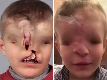 最恐怖小男孩:天生没有眼睛鼻子长在额头上