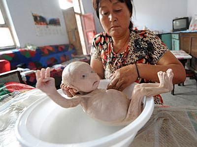 """男婴出生无肝门 肌肉萎缩骨瘦如柴似""""外星人"""""""