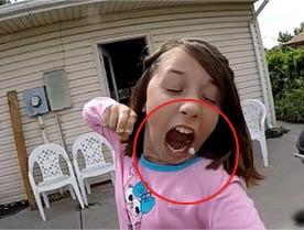 美国11岁女孩自己拉动弓弩拔牙