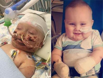 11个月大宝宝因病截肢 却仍然拥有阳光般的微笑