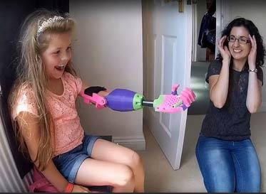 独臂女孩惊讶地收到3D打印手臂