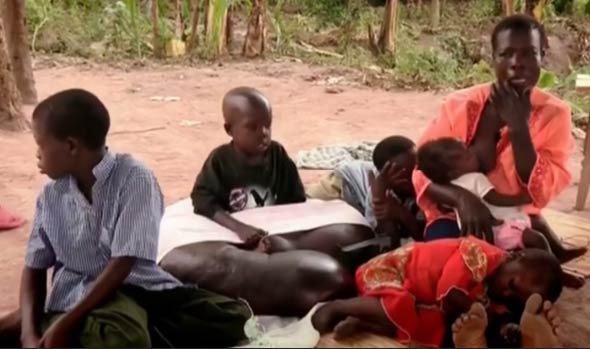 非洲男孩得怪病 腿长1.5米打破医学记录